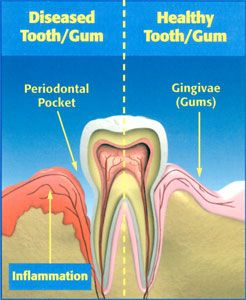 diseased tooth and gum