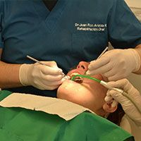 dental crowns surgery