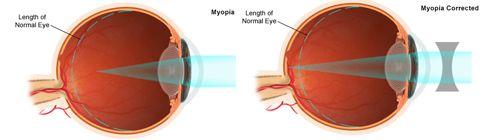 myopia corrected