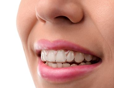 invisalign on girl's teeth
