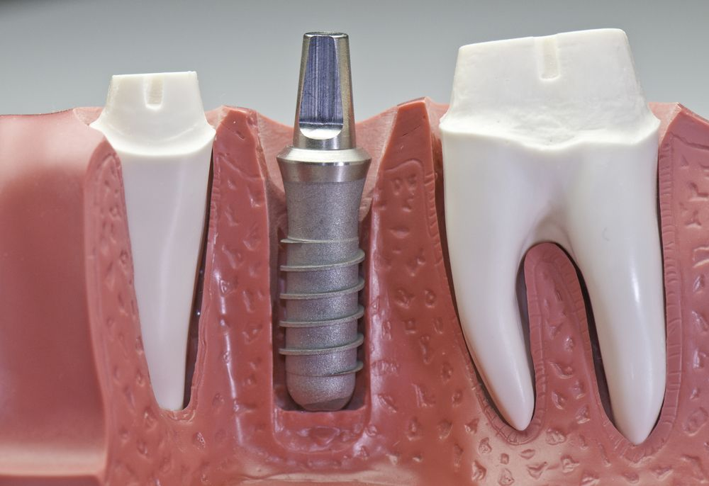 Tooth Implants in Coral Gables FL