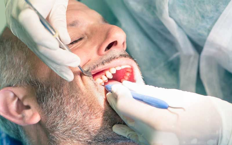 man dental procedure