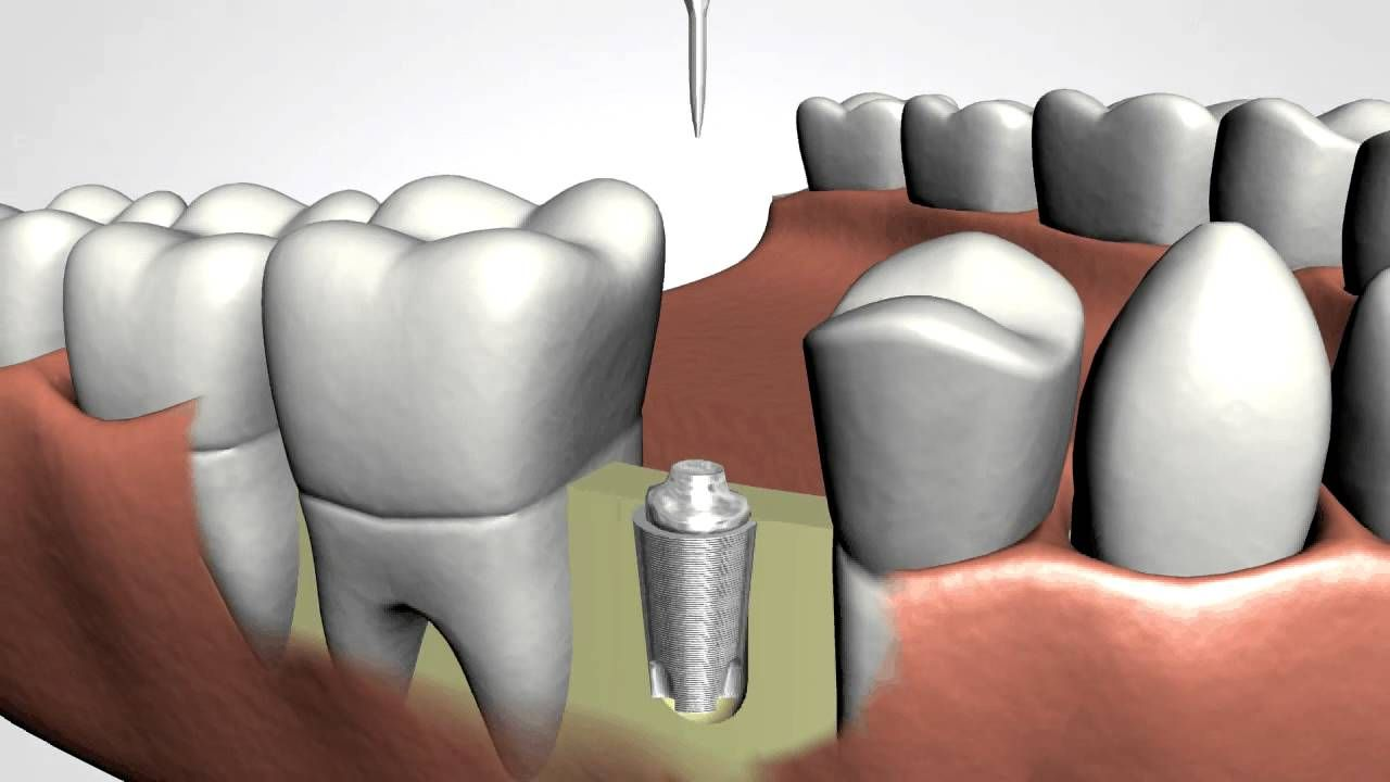 Dental Implant image how its done