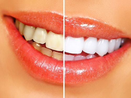 teeth whitening in florida