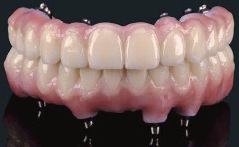 Teeth Next Day