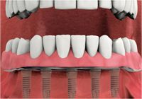 full arch teeth replacement procedure