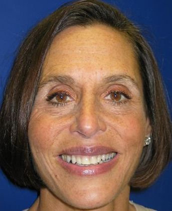 the picture of girl for before in porcelain veneers