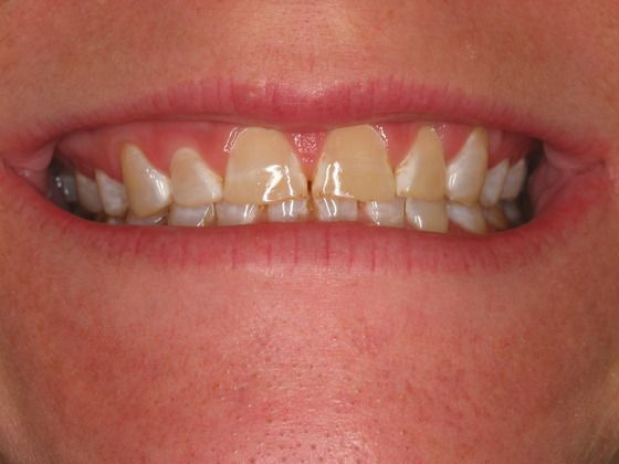 the picture of girl's teeth for before in porcelain veneers