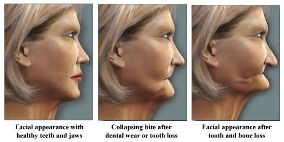 facial appearance through tooth and bone loss