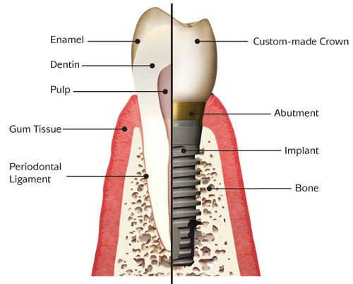 anatomy of the dental implant
