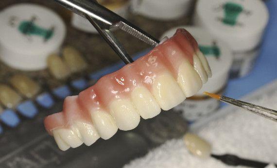 making dentures