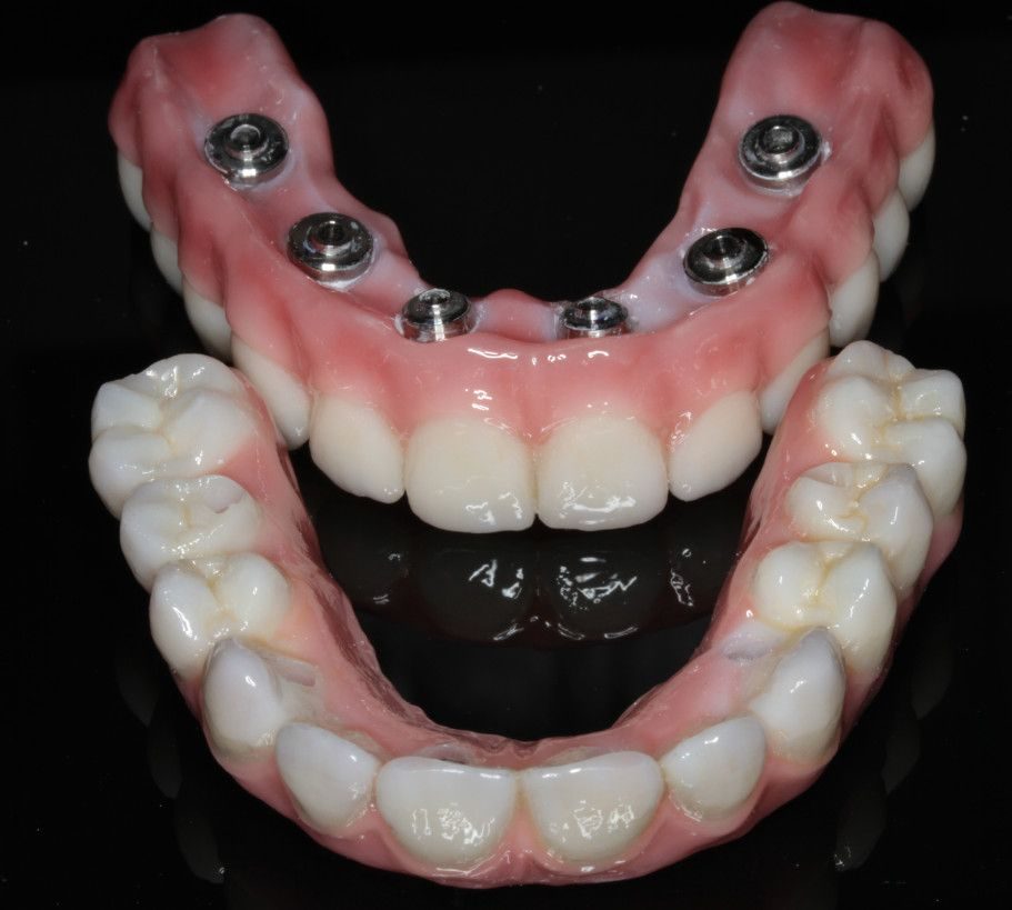 dental implants top view