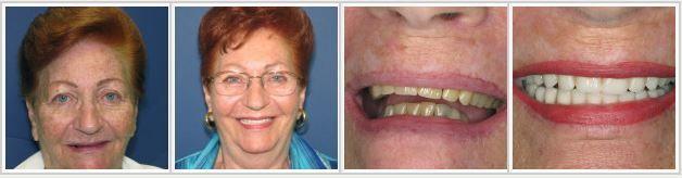 overbite and dark yellow teeth