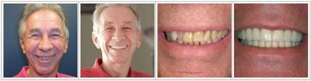 yellow teeth treatment