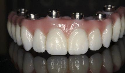 Prettau Zirconia Bridge with dental implant connectors