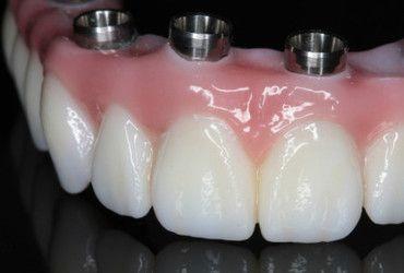 Close view of Prettau Zirconia bridge showing natural looking teeth and dental implant connectors