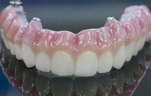 dentures for missing teeth