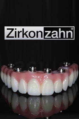 zirkonzahn dental bridges