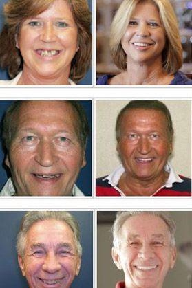 missing teeth treatment