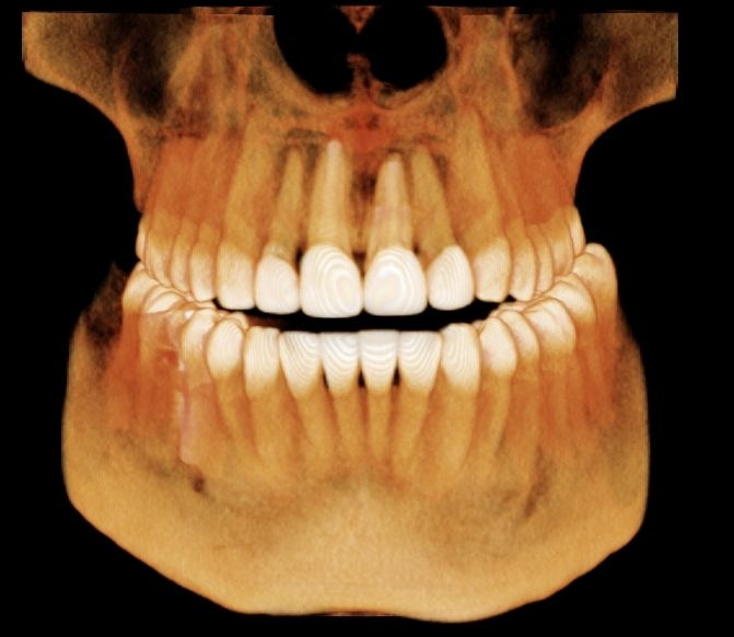 Digital imaging view of patient's mouth showing cosmetic teeth enhancements