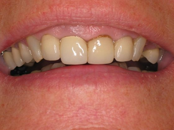 the picture of girl's teeth for before in COMPLETE DENTAL RESTORATION