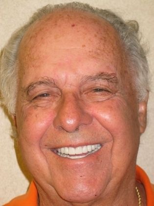 the picture of man for after in COMPLETE DENTAL RESTORATION