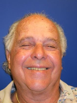 the picture of man for before in COMPLETE DENTAL RESTORATION