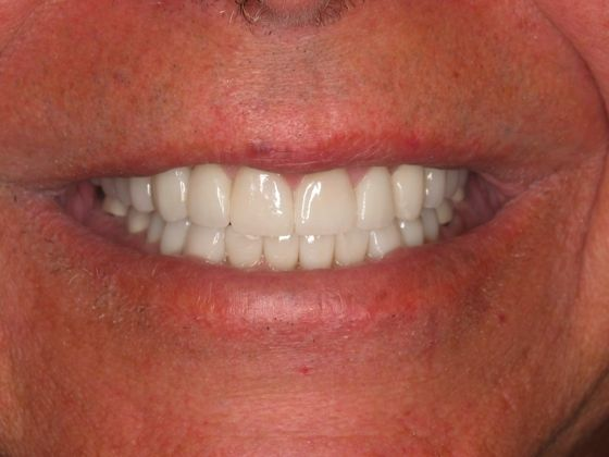 the picture of man's teeth for after in COMPLETE DENTAL RESTORATION