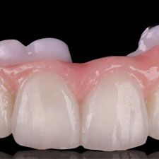 The PRETTAU® ZIRCONIA Dental Implant Bridge