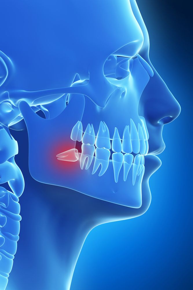 An impacted wisdom tooth
