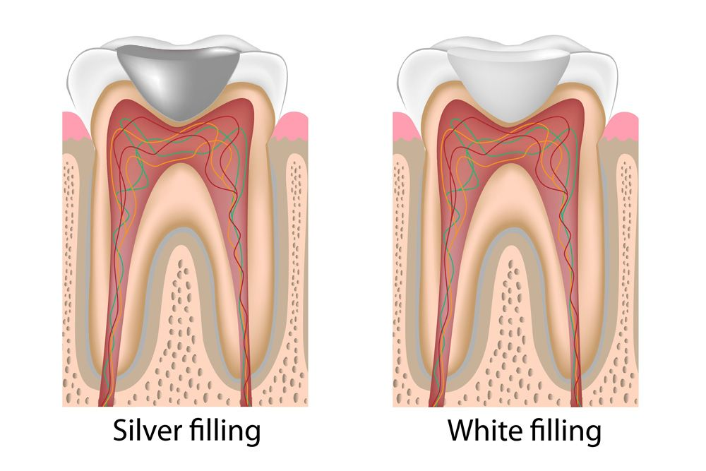 Tooth treated with a silver dental filling and one treated with a white dental filling