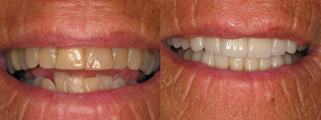 metal free tooth filling