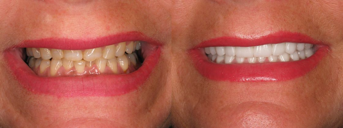 teeth grinding problem treatment
