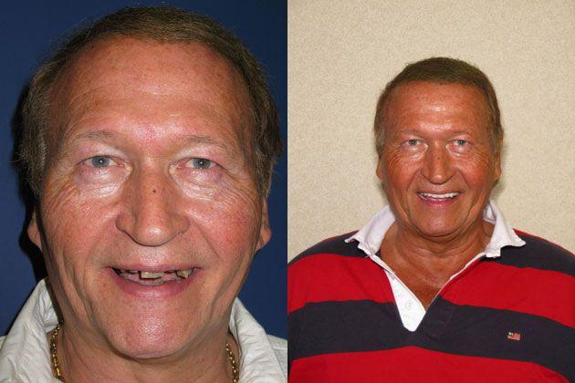 missing teeth man