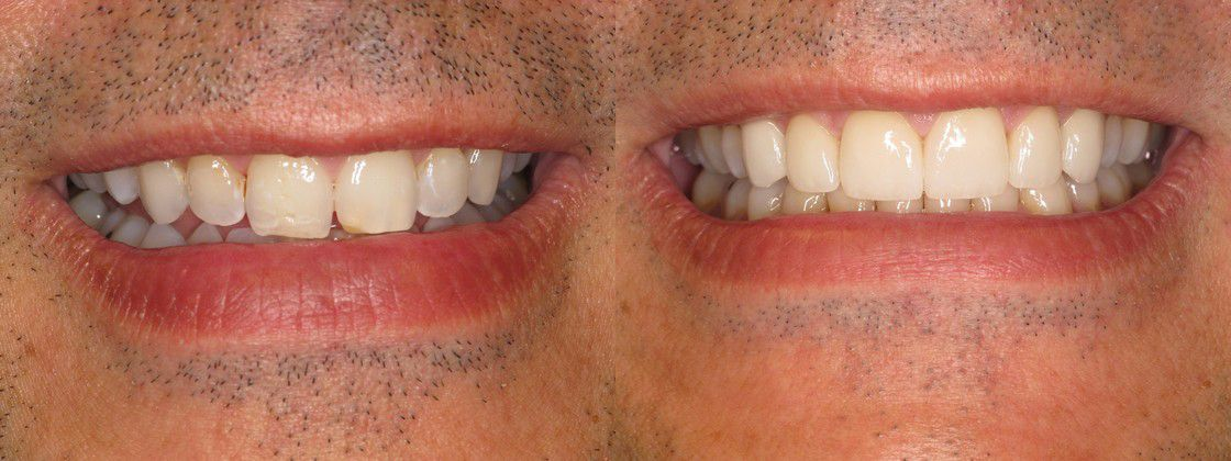 crooked teeth solution
