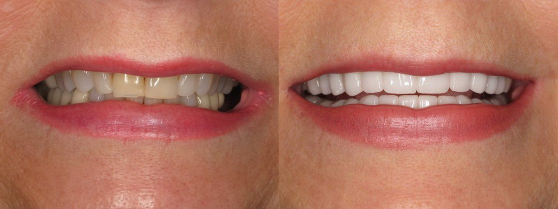 fix teeth color solution