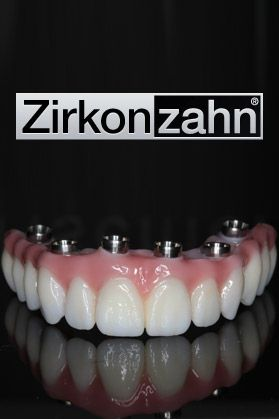 dental bridges zirkon zahn