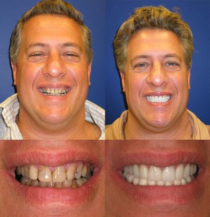 John - Full Mouth Cosmetic Restoration