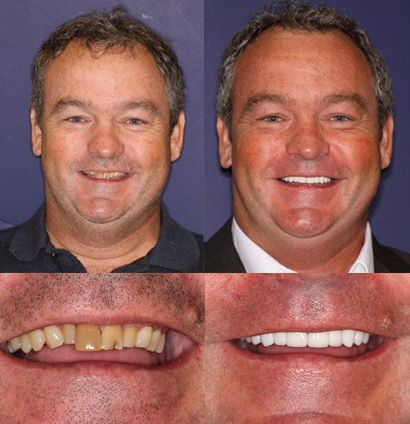 Tim - Full Mouth Cosmetic Restoration