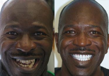 full dentures in denver