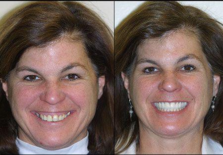 Cosmetic restoration dentist in denver