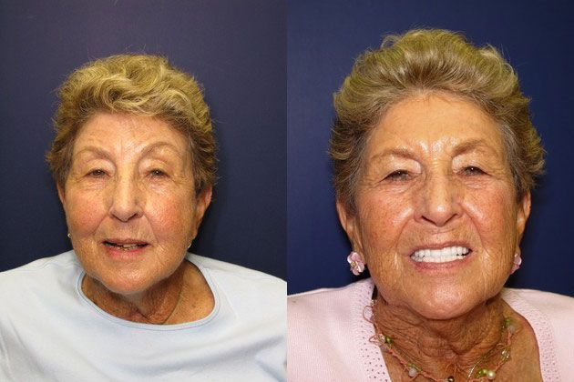 before and after using porcelain crowns