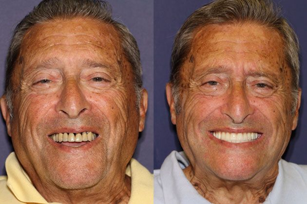dental implants before photos