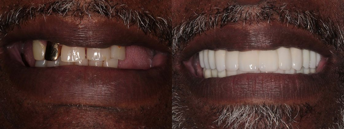 full mouth reconstruction results