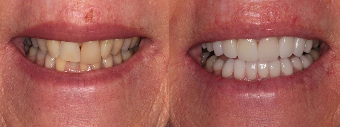 dental implants results pictures
