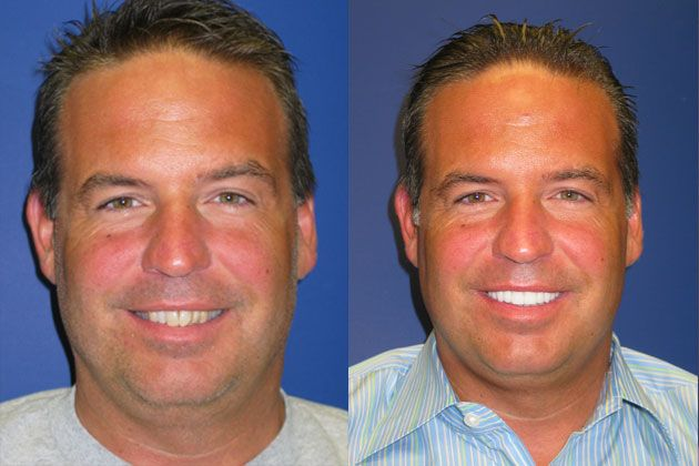 Smile Makeover / Smile Lift : Smile Lift with Cosmetic Porcelain Veneers
