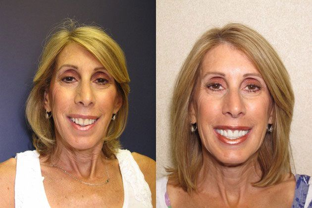 Cosmetic Porcelain Veneers: Brighten your stained yellow teeth