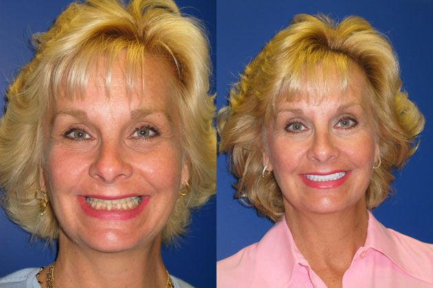 Smile Makeover / Smile Lift : Cosmetic Porcelain Veneers EMAX