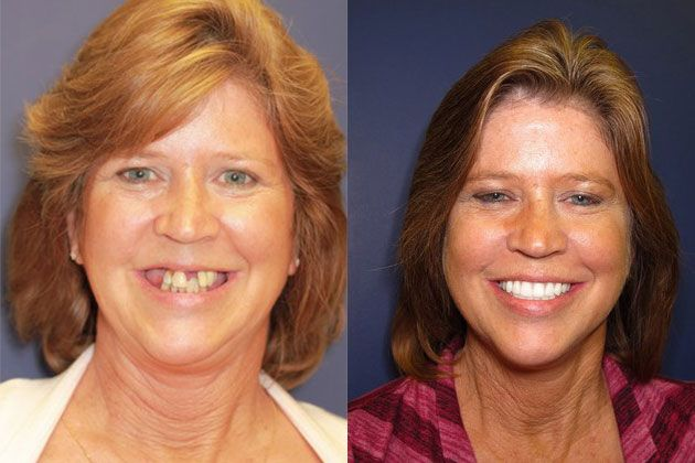 Full Mouth Restoration: Pretttau Zirconia Dental Implants