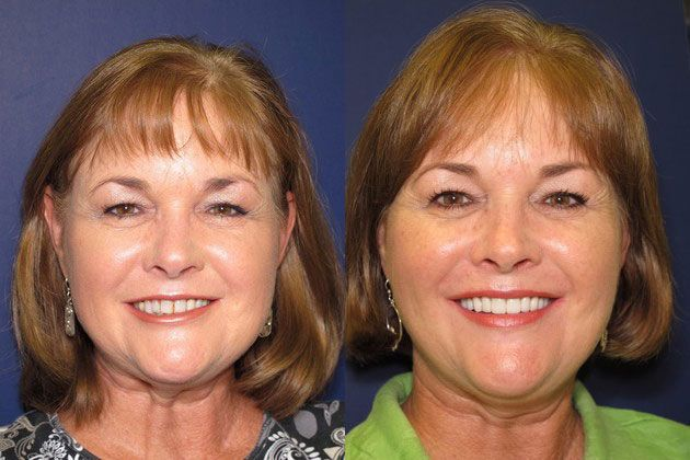 Full Mouth Restoration: Full mouth restoration balanced facial aesthetics